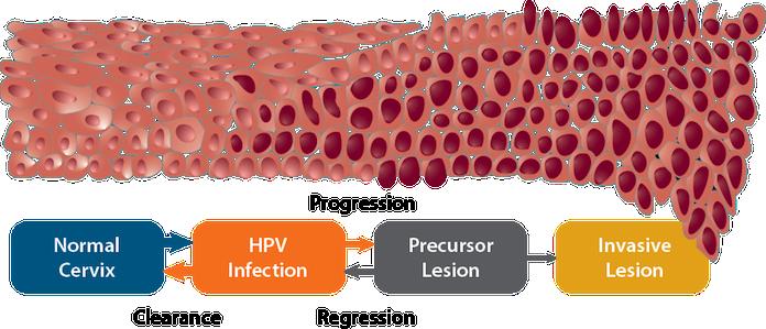 Méhnyakszűrés és HPV elleni vakcina: mi újság a világban? (x)